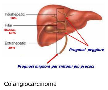 Colangiocarcinoma-legame-con-i-livelli-di-bilirubina