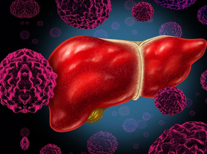 emocromatosi effetti sul fegato