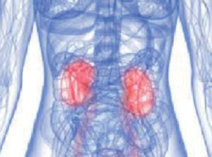 quadro clinico della sindrome nefrosica