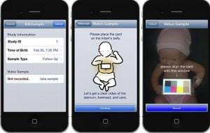 Applicazione -per-iPhone -e-diagnosi-d'ittero-neonatale