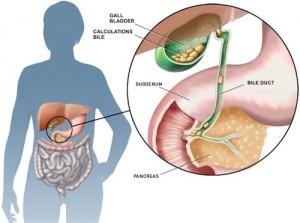 Colica-biliare-sintomi-e-terapia