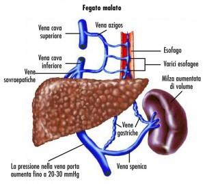 Cirrosi-epatica-e-livelli-alterati-di-bilirubina