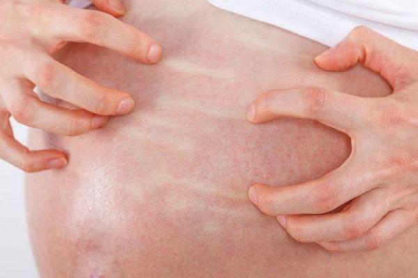 Colestasi-in-gravidanza-cause-e-sintomi